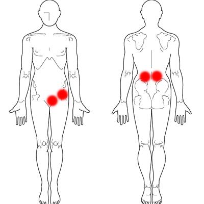 股関節痛 症例1