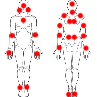 自律神経失調症 症例3