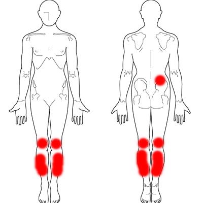 膝痛 40代女性